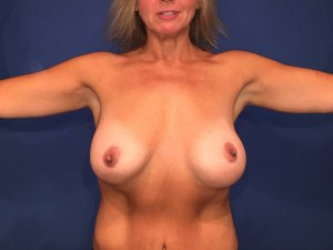 Manhattan Breast Augmentation after 7